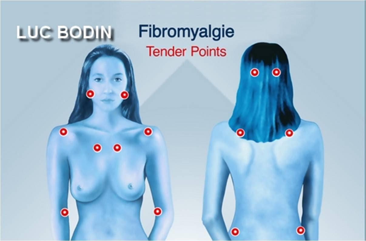 Fibromyalgie : quelles sont les personnes à risques